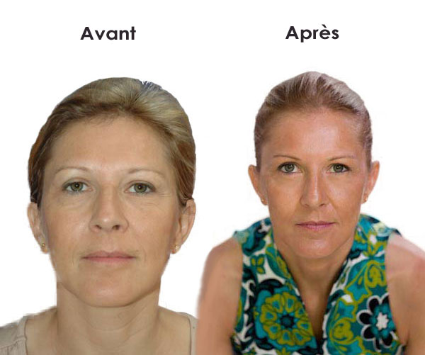 massage facial avec l'acupression